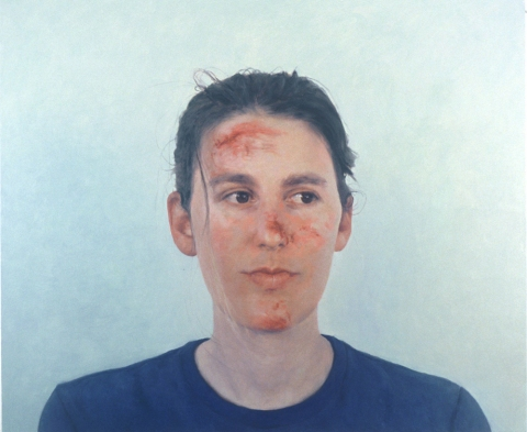 2003 A. With Scraped Face