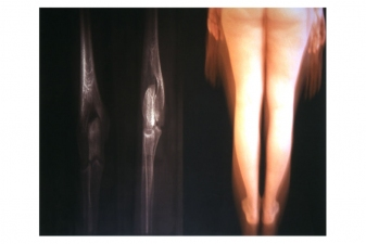 Nicola Woods Illuminated photographs exploring light and the body 2005-2008 Backlit film