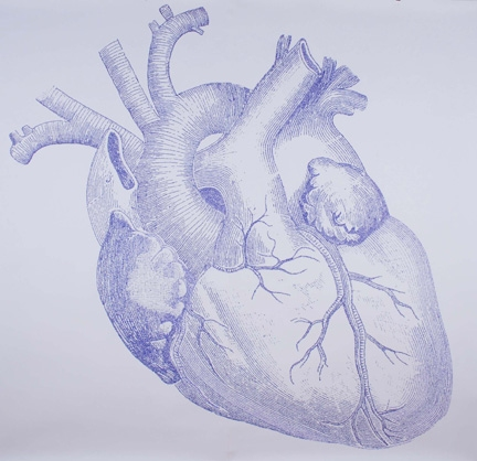 Drawings Apical Hypertrophic Cardiomyopathy