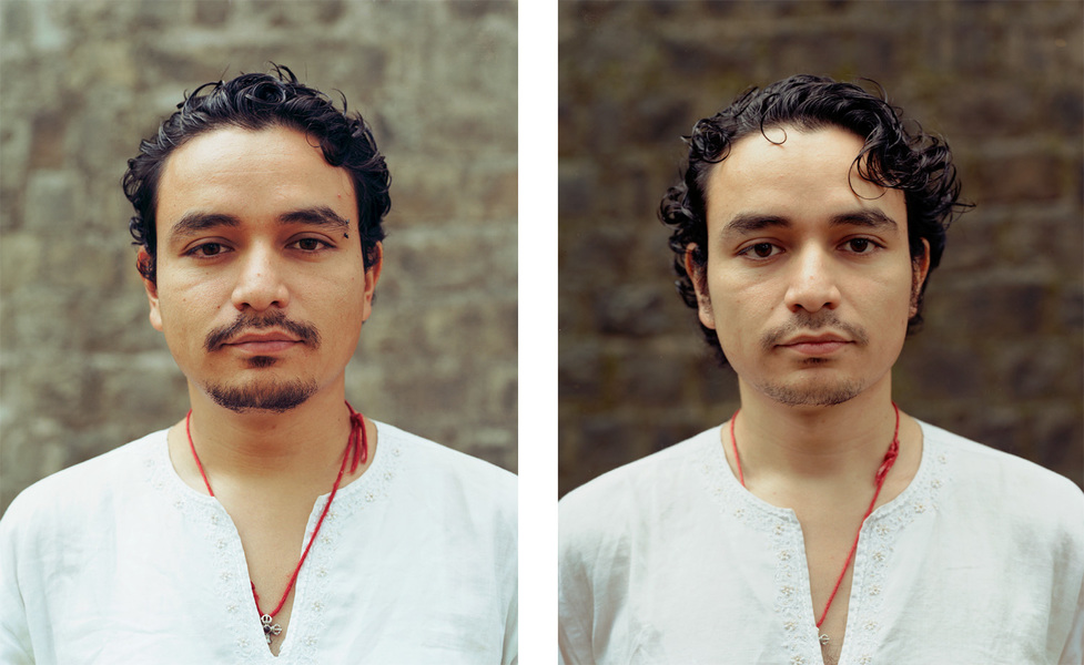 <b>Before and After</b> Miguel
