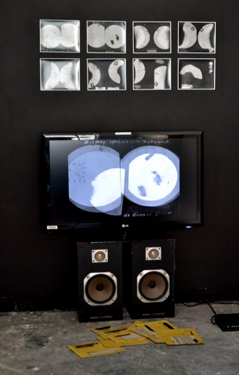 lu hanna   Installation/Performance Found materials (mammogram x-rays), photographs, single channel video, and speakers.